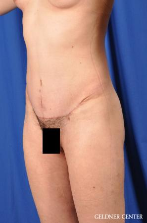 Tummy Tuck: Patient 32 - After Image 4