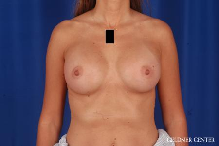 Breast Augmentation: Patient 173 - After Image 1