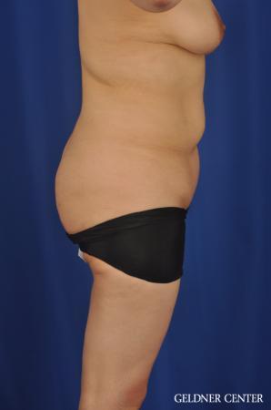 Lipoabdominoplasty: Patient 7 - Before Image 3