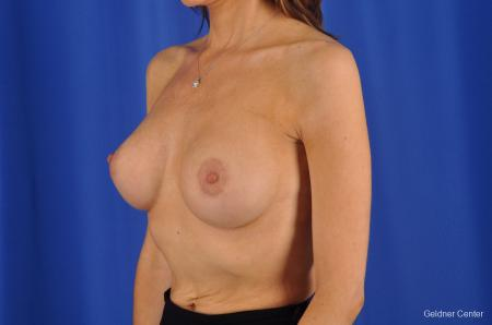 Breast Lift Chicago 2296 -  After Image 5