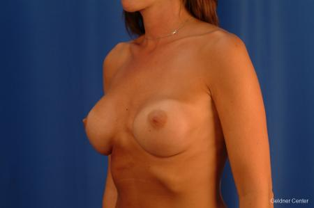 Complex Breast Augmentation Streeterville, Chicago 2620 - Before and After Image 5