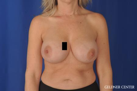 Chicago Breast Augmentation 11970 -  After Image 1
