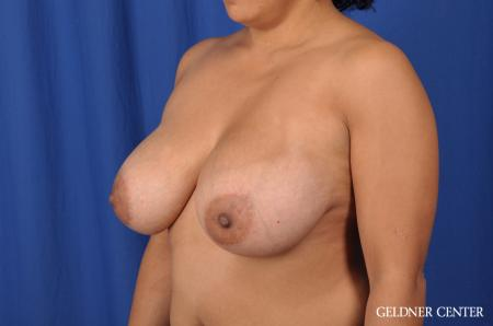 Breast Reduction: Patient 23 - Before and After Image 4