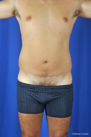 Liposuction-for-men: Patient 4 - Before Image