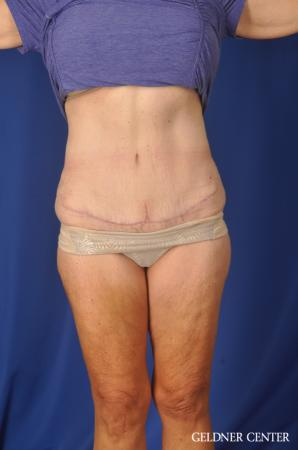 Liposuction: Patient 34 - After Image 1