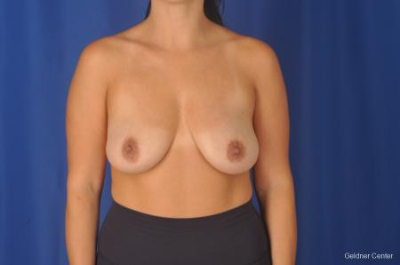Breast Augmentation: Patient 78 - Before Image 1