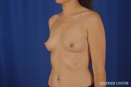 Breast Augmentation Hinsdale, Chicago 5579 - Before and After Image 4