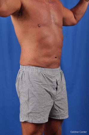 Liposuction For Men: Patient 5 - After Image 2