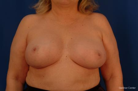 Complex Breast Augmentation Hinsdale, Chicago 2430 -  After Image 1
