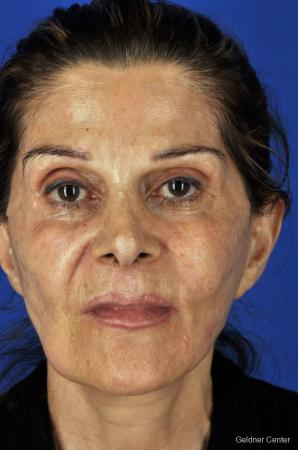 Facelift: Patient 4 - Before Image