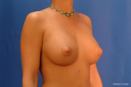 Breast Augmentation Hinsdale, Chicago 2438 -  After Image 3