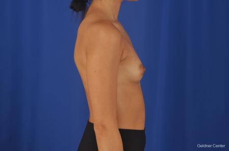 Breast Augmentation Streeterville, Chicago 8616 - Before Image 2
