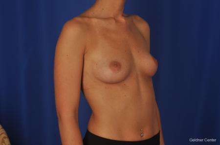 Chicago Complex Breast Augmentation 2381 - Before Image 3