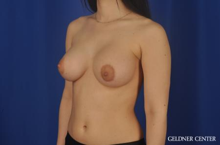 Chicago Breast Lift 5473 -  After Image 4