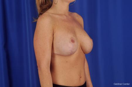 Chicago Breast Lift 2291 -  After Image 2