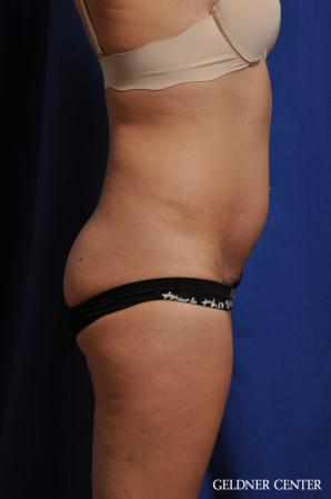 Tummy Tuck: Patient 32 - Before Image 3
