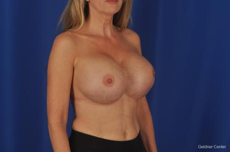 Complex Breast Augmentation Lake Shore Dr, Chicago 2389 - Before Image 2