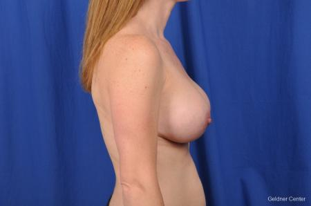 Breast Augmentation Hinsdale, Chicago 2531 -  After Image 2
