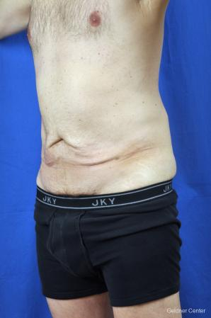 Liposuction For Men: Patient 8 - Before and After Image 4