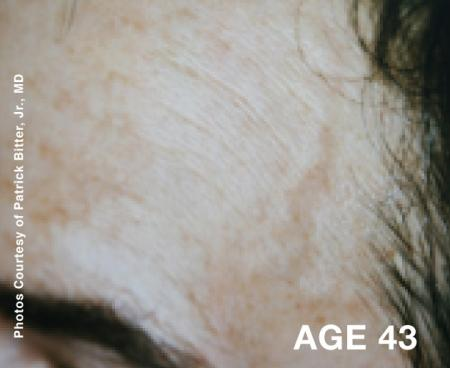 Laser: Patient 2 - Before Image 1