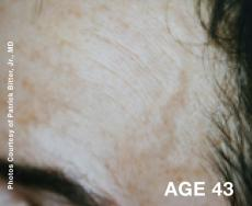 Laser: Patient 2 - Before Image
