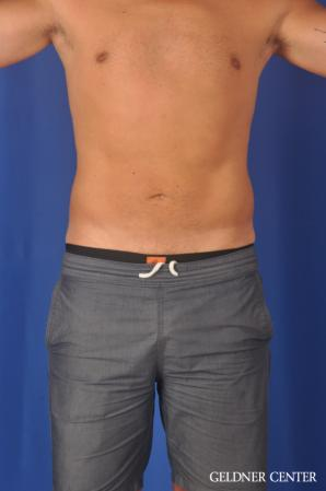 Liposuction For Men: Patient 12 - After Image 1