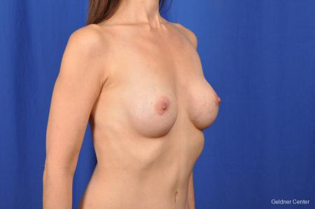 Chicago Breast Augmentation 2376 -  After Image 3