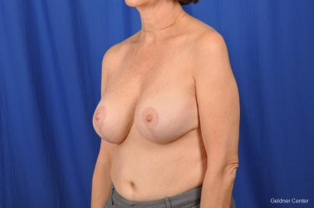 Breast Lift Hinsdale, Chicago 2058 -  After Image 4
