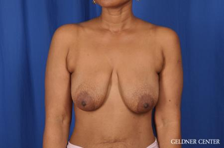 Breast Lift: Patient 38 - Before Image 1