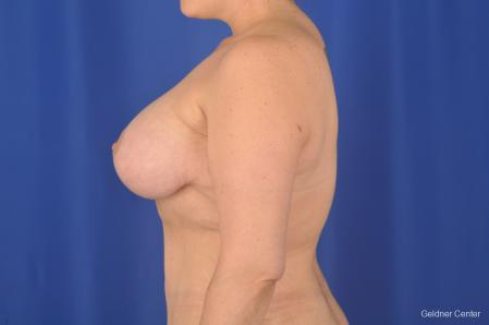 Breast Lift: Patient 18 - After Image 4
