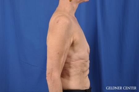 Breast Augmentation: Patient 138 - Before Image 2