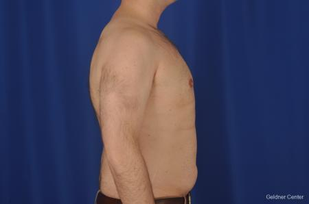 Gynecomastia: Patient 1 - After Image 2