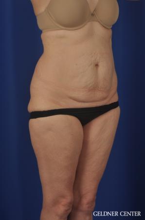 Liposuction: Patient 33 - Before 2