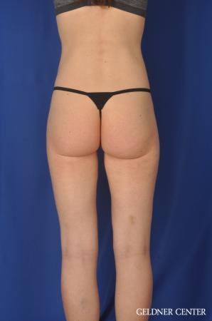Liposuction: Patient 36 - After Image 5