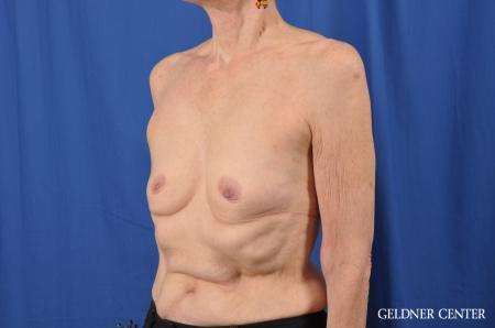 Breast Augmentation: Patient 138 - Before and After Image 4