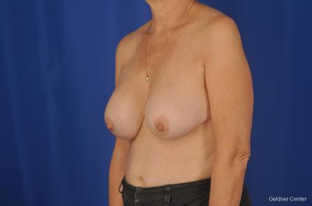 Breast Lift Hinsdale, Chicago 2058 - Before and After Image 4