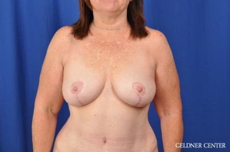Breast Lift Hinsdale, Chicago 3232 -  After Image 1