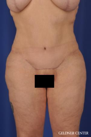 Liposuction: Patient 23 - After Image 1