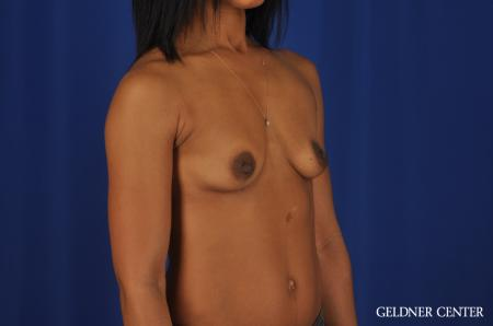 Chicago Breast Augmentation 4291 - Before Image 2