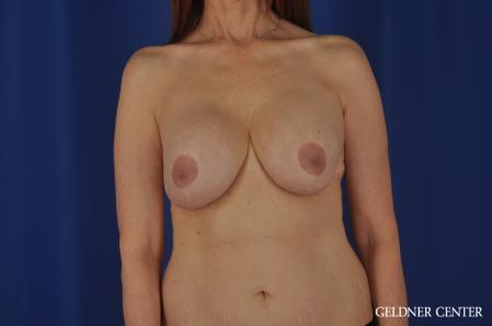 Breast Lift: Patient 47 - Before Image 1