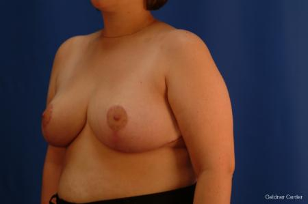 Breast Reduction Streeterville, Chicago 2522 -  After Image 4