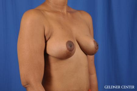 Breast Lift: Patient 38 - After Image 3