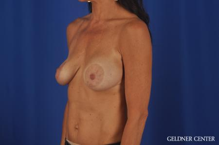 Chicago Complex Breast Augmentation 5471 - Before and After Image 4