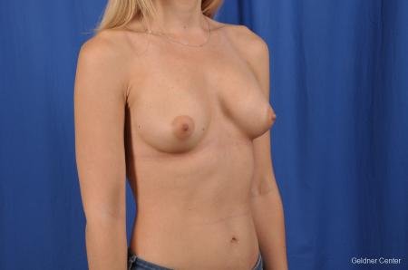 Breast Augmentation: Patient 149 - After Image 2