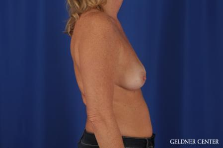 Breast Augmentation: Patient 165 - Before Image 3