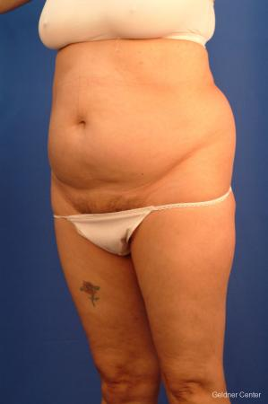 Liposuction: Patient 18 - Before and After 4