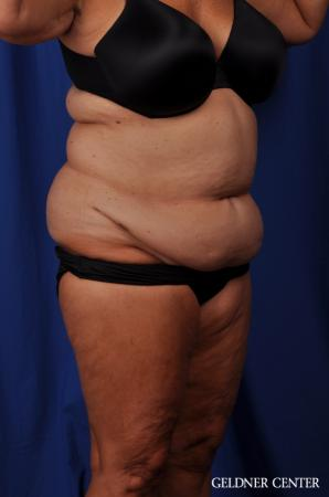 Liposuction: Patient 24 - Before Image 2