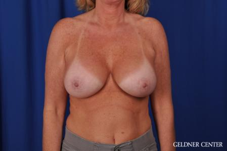 Breast Augmentation: Patient 165 - After Image 1