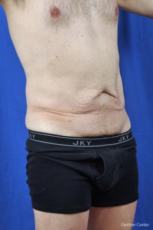 Liposuction For Men: Patient 8 - Before Image 2