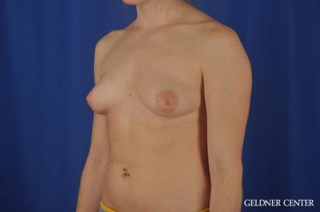 Chicago Breast Augmentation 5468 - Before and After Image 4